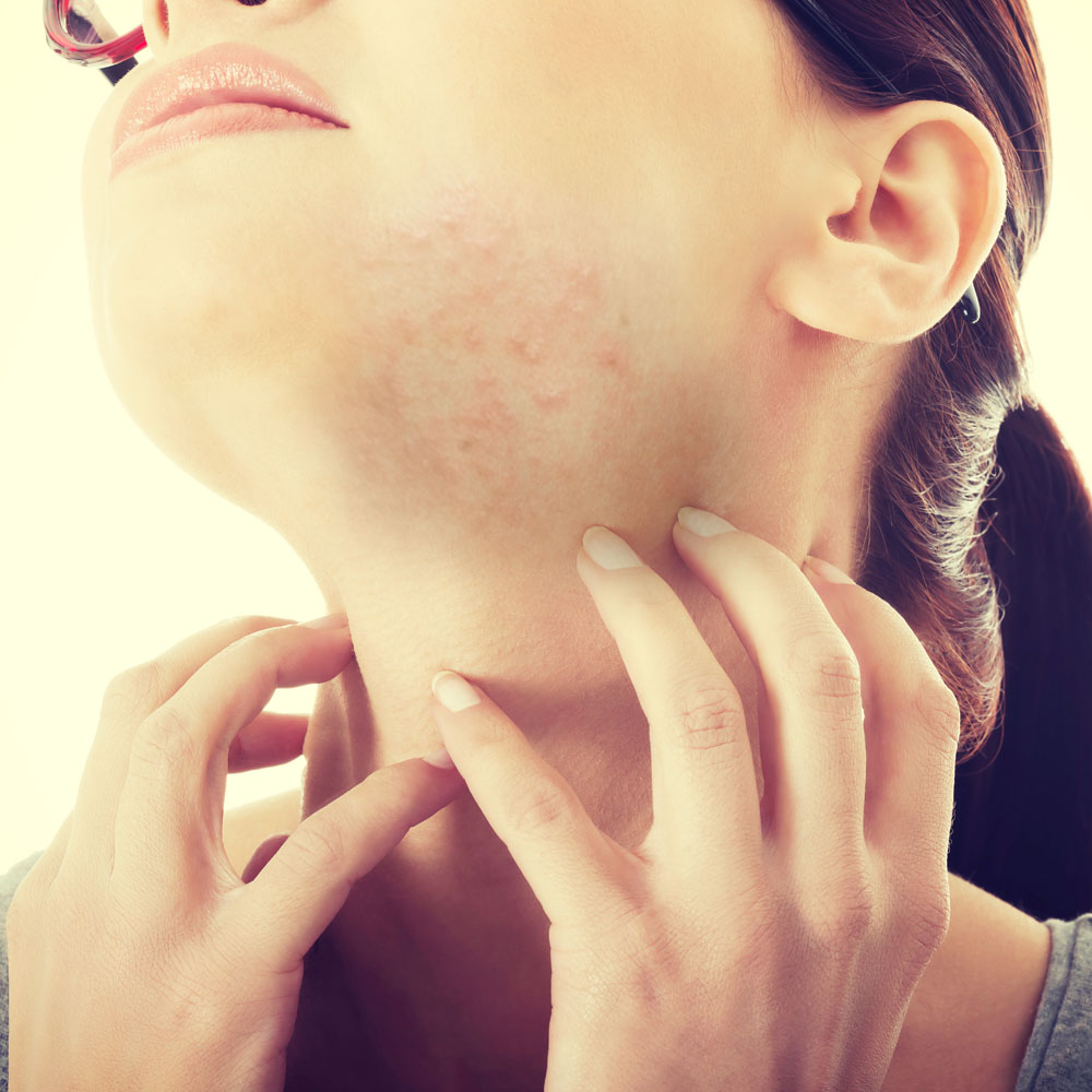 Rosacea Clinical Research Trials